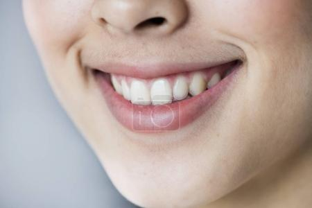 Close up portrait of Young Asian girl teeth smiling
