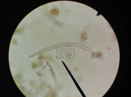 Photo pour Gros plan oeuf avec adulte de parasite trouver avec microscope en parasitologie . - image libre de droit