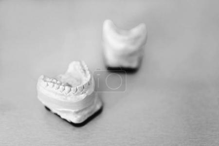 Dental gypsum model of the teeth