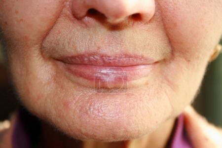 Photo pour Lèvres. Silicone. Les plis naso-labiaux rides autour de la bouche - image libre de droit