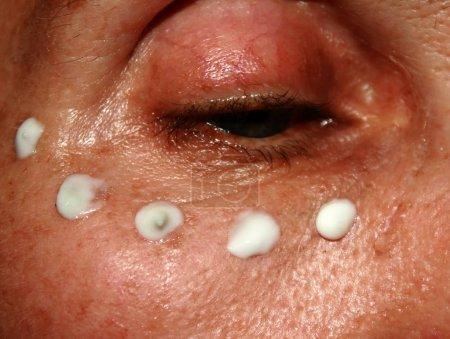 Wrinkle cream application under the eyes. Wrinkles on the eyelid.