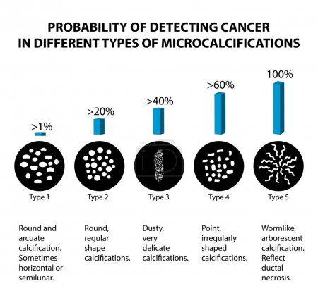 Illustration for The probability of detecting breast cancer with different types of microcalcinates. Mammography. Infographics. Vector illustration on isolated background. - Royalty Free Image