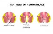 Treatment of hemorrhoids with suppositories Infographics Vector illustration on isolated background