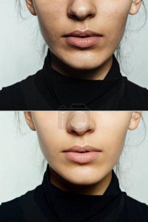 Photo pour Santé, personnes, concept jeunesse et beauté - Avant et après l'opération cosmétique. Jeune jolie portrait de femme. Avant et après la procédure cosmétique ou plastique thérapie anti-âge, traitement - image libre de droit