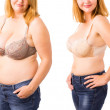 Woman before and after weight loss...