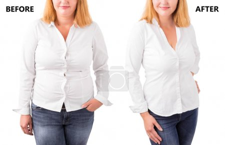 Photo for Woman posing before and after successful diet - Royalty Free Image
