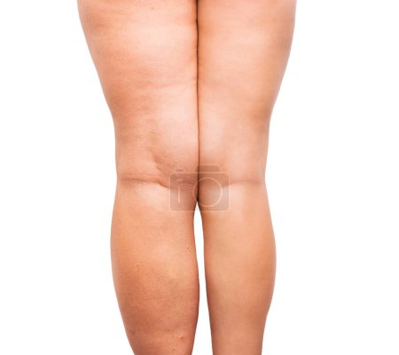 woman legs before and after wight loss