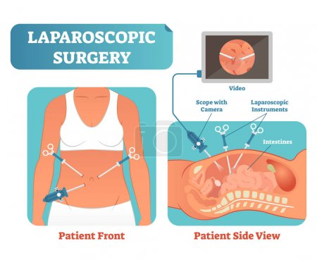 Illustration for Laparoscopic surgery medical health care surgical procedure process, anatomical cross section vector illustration diagram. Laparoscopy instruments with camera and screen. - Royalty Free Image