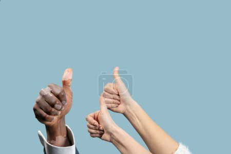 Photo for Close up of male and female hands with vitiligo pigments isolated on blue studio background. Wearing office attire. Special skin. Showing thumbs up. Business, finance, ad concept. Copyspace. - Royalty Free Image