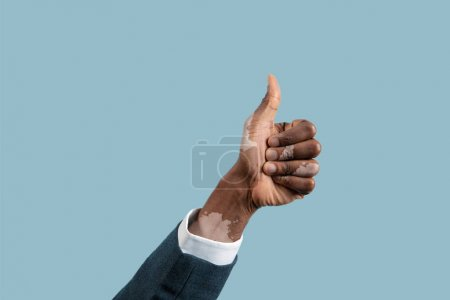 Photo for Close up of male hands with vitiligo pigments isolated on blue studio background. Wearing office attire, workwear. Special skin. Showing thumb up. Business, finance, advertising concept. Copyspace. - Royalty Free Image