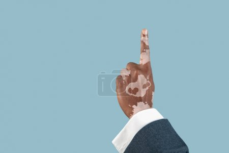 Photo pour Gros plan des mains masculines avec des pigments vitiligo isolés sur fond bleu studio. Porter des vêtements de bureau, des vêtements de travail. Une peau spéciale. Pointant du doigt. Entreprise, finance, concept publicitaire. Espace de copie . - image libre de droit