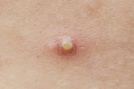 acne macro, pimple closeup