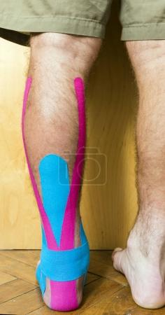 Leg covered colored tapes used in the rehabilitation of injuries