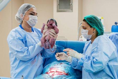 Photo pour Équipe chirurgicale effectuant une opération chirurgicale. Médecin pratiquant la chirurgie à l'aide d'équipement stérilisé. Gynécologues et sages-femmes qui accouchent. Nourrisson en maternité - image libre de droit