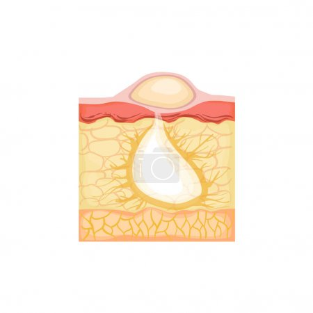 Dermatology Skincare Anatomical Info Illustration Demonstrating Pimple Skin Problem Development