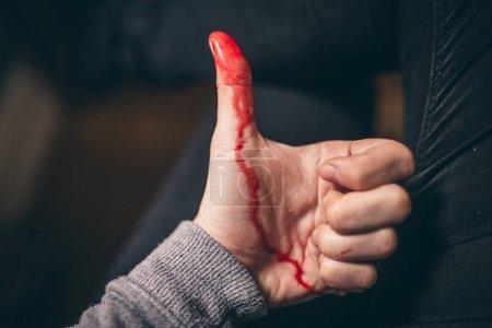 Foto de Vista cercana de la sangría del corte de dedo mostrando pulgar - Imagen libre de derechos