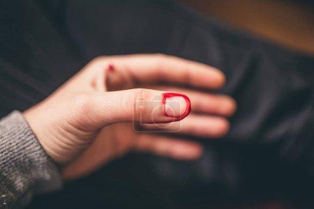 Foto de Vista cercana de la sangría del corte de dedo - Imagen libre de derechos