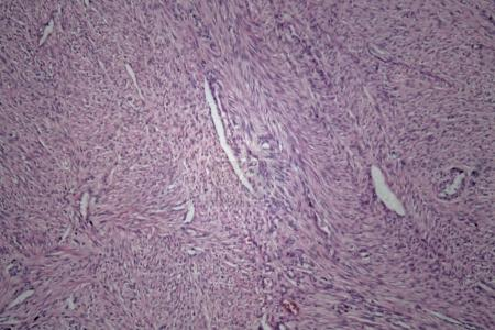 Cells of human uterus tissue with inoffensive tumor cells