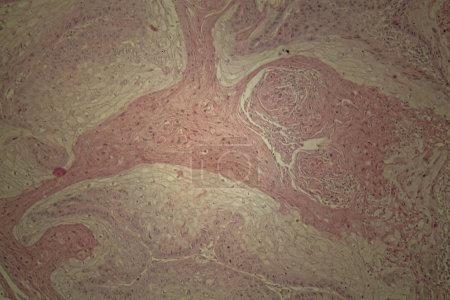Human skin with squamous cell carcinoma