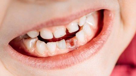 Photo pour La dent de lait est tombée - image libre de droit