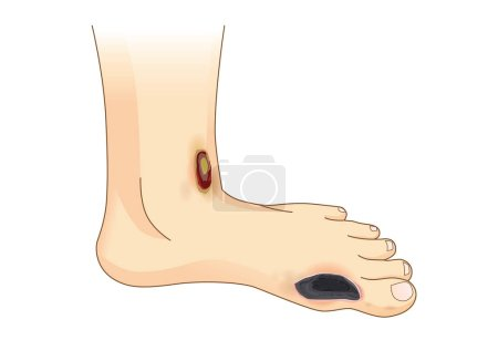 Diabetic Foot Pain and Ulcers.