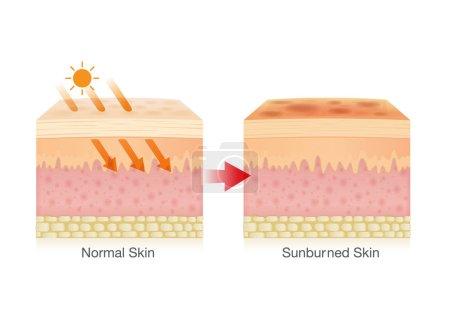Illustration pour L'effet de la lumière solaire provoque des coups de soleil sur la peau. Illustration sur le danger des rayons UV . - image libre de droit