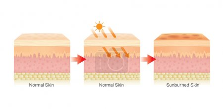 Illustration pour Étape de changement de la couche de peau humaine endommagée par la lumière du soleil. Illustration sur les soins de santé . - image libre de droit