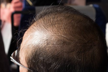 Close-up of balding and thinning hair of man revealing scalp