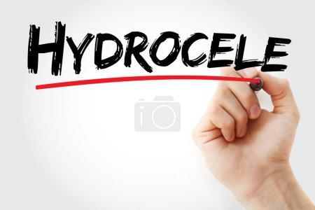 Photo pour Texte hydrocèle avec marqueur, fond de concept - image libre de droit
