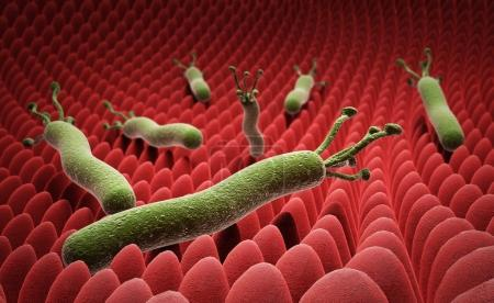 Helicobacter pylori on the surface of the stomach ...