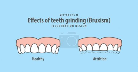 Effects of teeth grinding (Bruxism) illustration vector on blue
