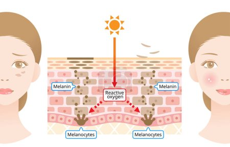 human skin mechanism of melanin and facial dark spots. Infographic skin layer illustration. Beauty and skin care concept
