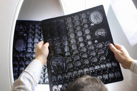 Arzt mit einem Bild eines Gehirn-MRT-Workflows