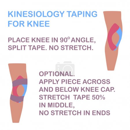 Kinesiology taping for knee. No stretch tape.