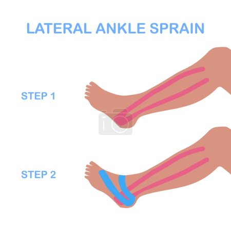Lateral ankle sprain. Correct kinesiology taping.