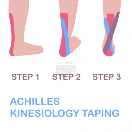 Achilles kinesiology taping.