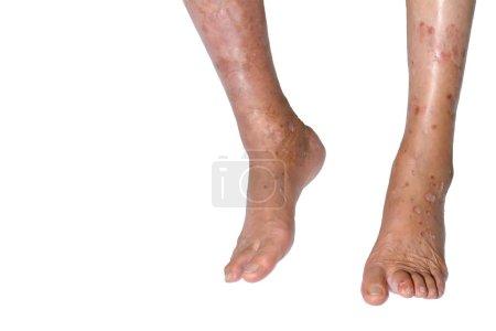Photo pour Les jambes de l'infection isolées sur un fond blanc . - image libre de droit