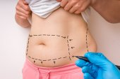 Plastic surgery doctor draw lines with marker on patient belly