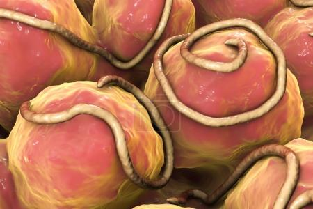 Photo pour Helminthes nématodes Enterobius dans l'intestin. Threadworm qui causent l'entérobiase, illustration 3D - image libre de droit