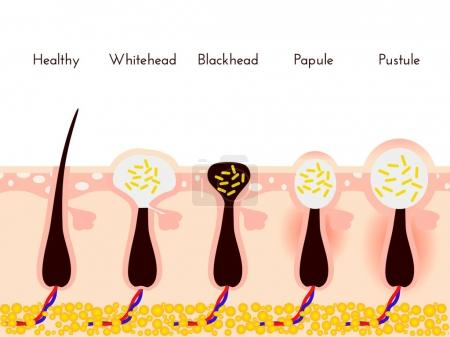 Skin problems. Types of acne pimples. Facial treatments and problem vector illustration. Whiteheads and Blackheads, Papules and Pustules