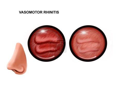 Photo pour Illustration de la rhinite vasomotrice de la muqueuse nasale. sain et enflammé - image libre de droit