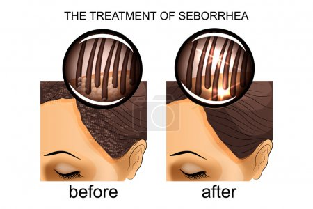 the treatment of seborrhea of the scalp. before and after