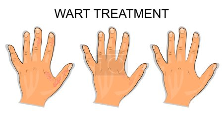 Hand affected by the wart