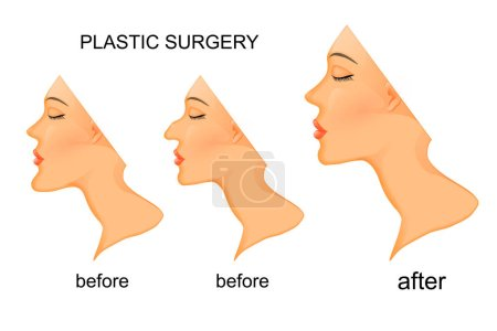 Illustration for Illustration of plastic surgery. nose, chin. before and after - Royalty Free Image