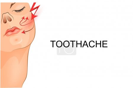 Illustration for Vector illustration of a toothache at the gir - Royalty Free Image