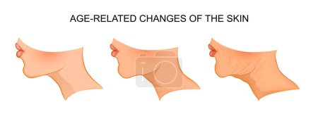 illustration of age-related skin changes. aging