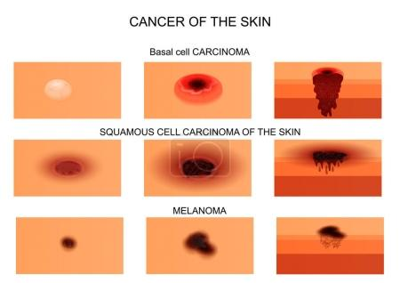 Illustration pour Illustration vectorielle du cancer de la peau. au stade initial et au stade de la nécrose. la vue de section . - image libre de droit