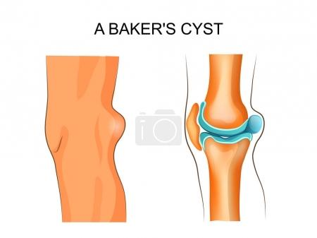 a Baker's cyst
