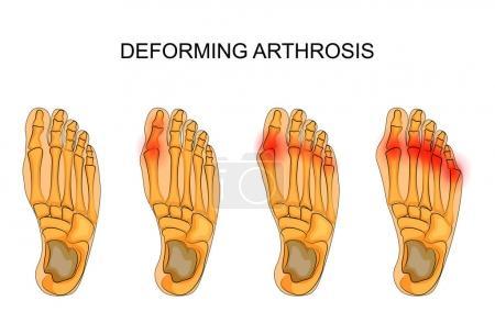 deforming arthrosis of the foot
