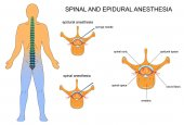 epidural and spinal anaesthesia
